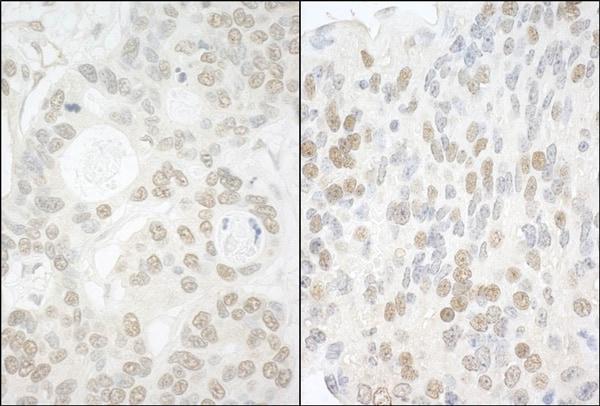 Immunohistochemistry (Formalin/PFA-fixed paraffin-embedded sections) - Anti-USP13 antibody (ab99421)