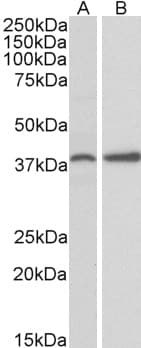 Western blot - Anti-SRBC antibody (ab99427)