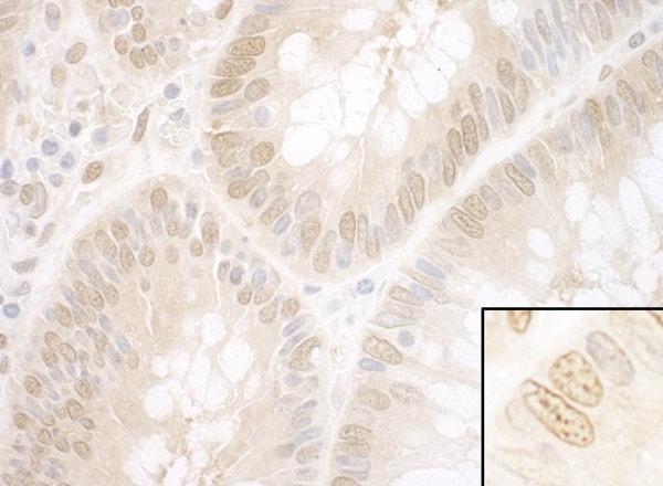Immunohistochemistry (Formalin/PFA-fixed paraffin-embedded sections) - Anti-NPAT antibody (ab99436)