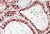 Immunohistochemistry (Formalin/PFA-fixed paraffin-embedded sections) - Anti-KCNN2/SK2 antibody (ab99457)