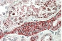 Immunohistochemistry (Formalin/PFA-fixed paraffin-embedded sections) - Anti-DCUN1D1 antibody (ab99506)