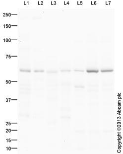 Western blot - Anti-Adipose Triglyceride Lipase antibody (ab99532)