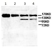 Western blot - Anti-ATP-binding cassette sub-family A member 3 antibody (ab99856)
