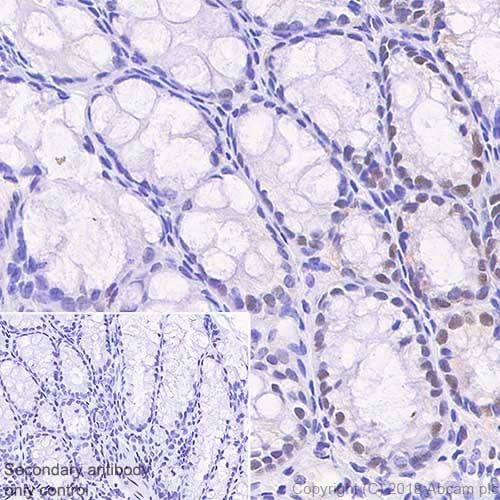 Immunohistochemistry (Formalin/PFA-fixed paraffin-embedded sections) - Anti-MSH6 antibody [SP93] (ab99889)