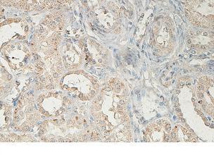 Immunohistochemistry (Formalin/PFA-fixed paraffin-embedded sections) - Anti-ABCA5 antibody (ab99953)
